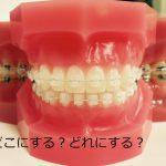 矯正歯科の選び方(矯正相談編)